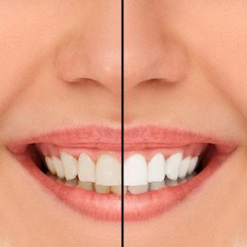 Before and after results of KoR Teeth Whitening in Beachwood, OH