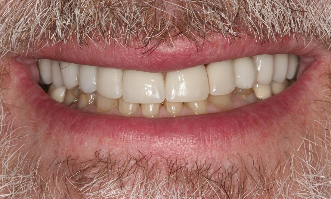 image of the same teeth after implants, crowns, and tmj treatment | Beachwood OH