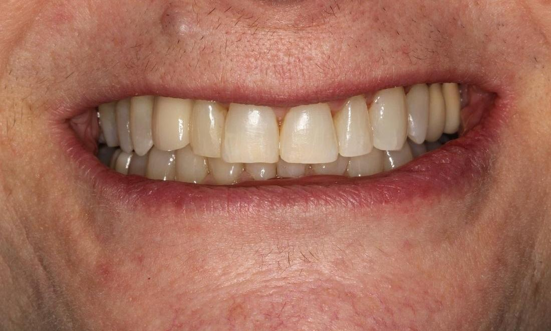 image of the same teeth after clear ortho, whitening, and bonding | Beachwood OH