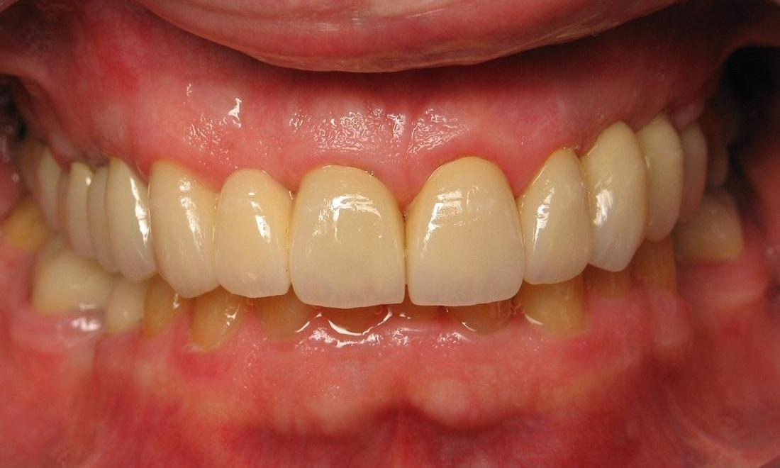 Image of the same teeth after extractions and crown lengthening | Beachwood OH