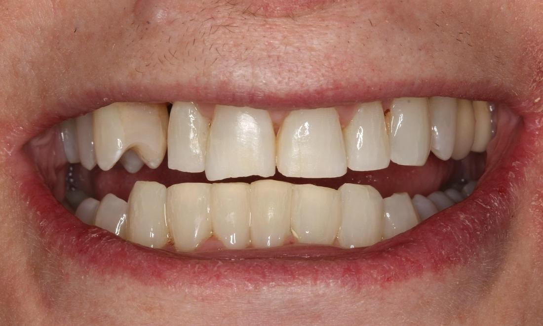 Image of the same teeth after composite bonding | Beachwood OH