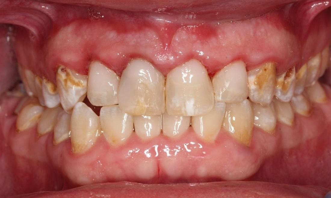 image of the same teeth after gum treatment and bonding | Beachwood OH