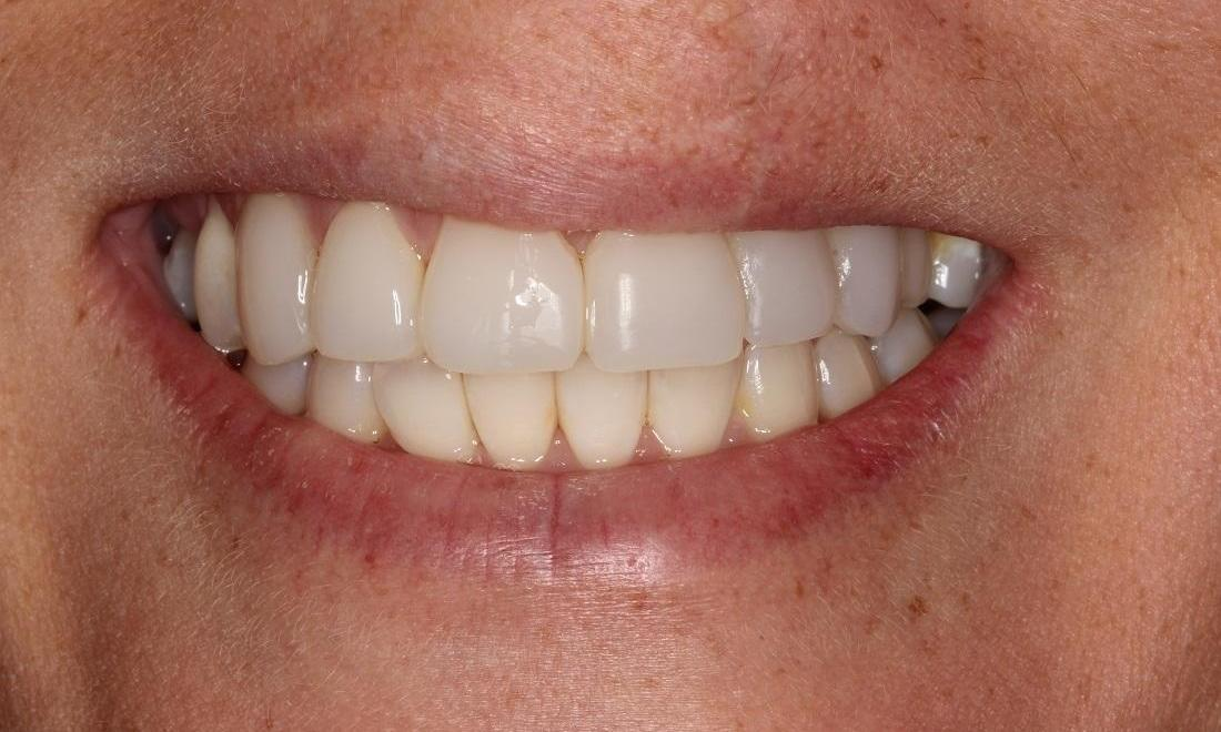 image of the same teeth after freehand resin veneers | Beachwood OH