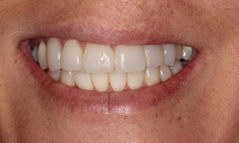 dental veneers | Beachwood Smiles | Beachwood oh