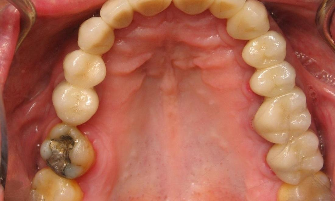 Same image of the underside of teeth after crowns and bridges | Beachwood OH