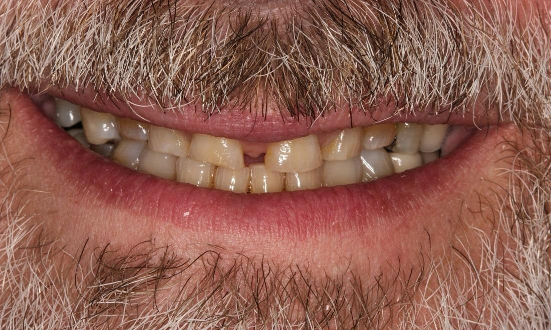 Image of teeth with wear and poor spacing | Beachwood OH