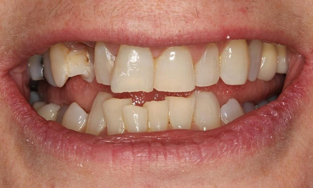 image of a broken front tooth and crowding | Beachwood OH