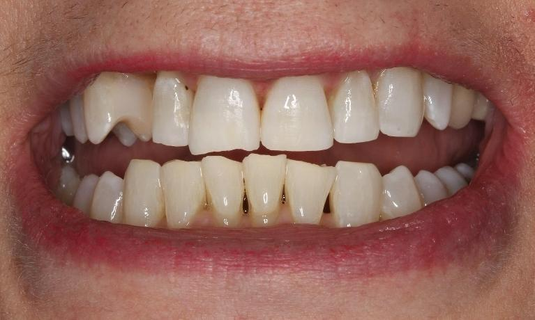 gum recession | beachwood smiles | beachwood oh