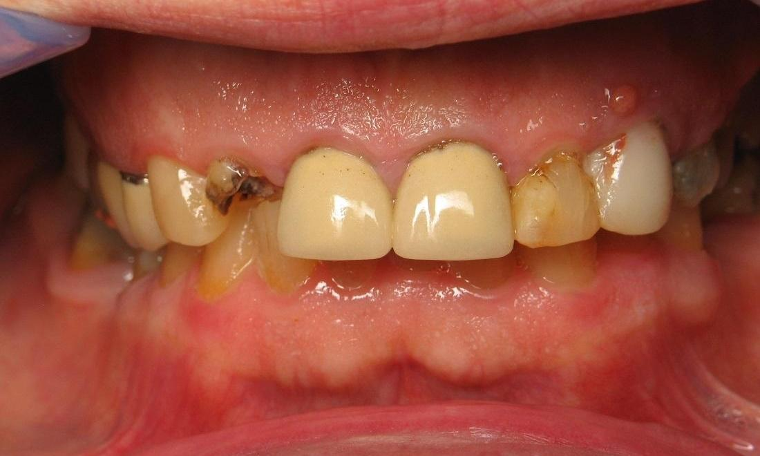 image of broken teeth with infections | Beachwood OH