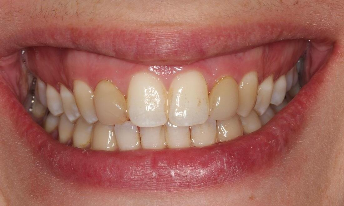 Image of teeth with undesirable color | Beachwood OH