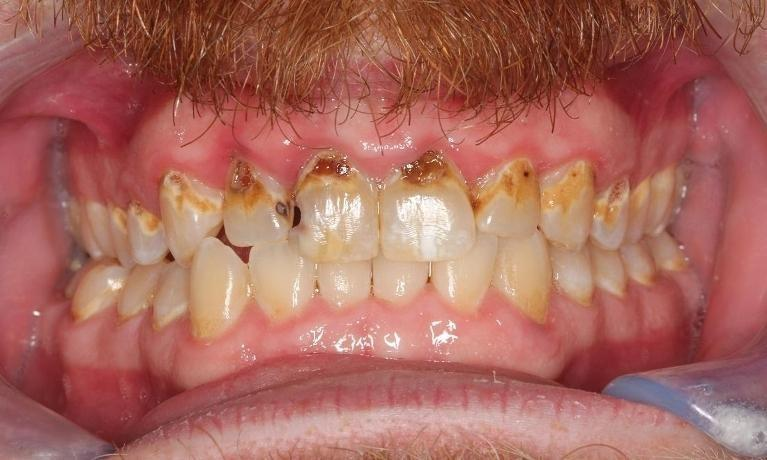 gum disease | beachwood smiles | beachwood oh