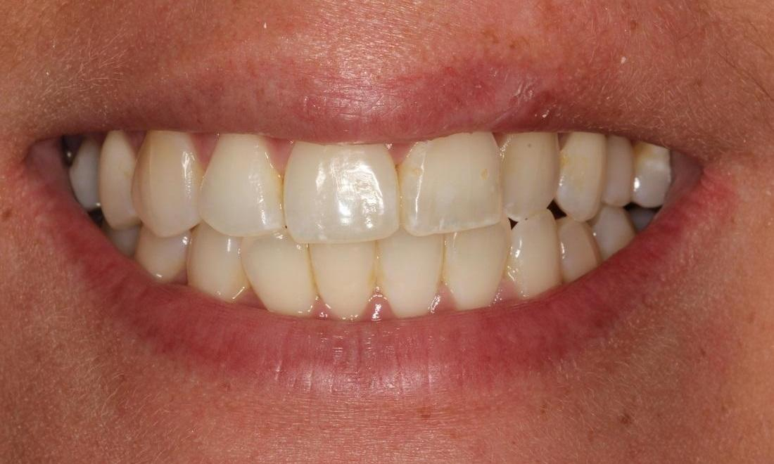 image of teeth with undesirable shape | Beachwood OH