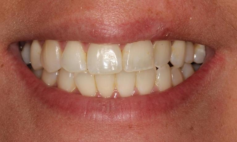veneers | Beachwood Smiles | Beachwood oh
